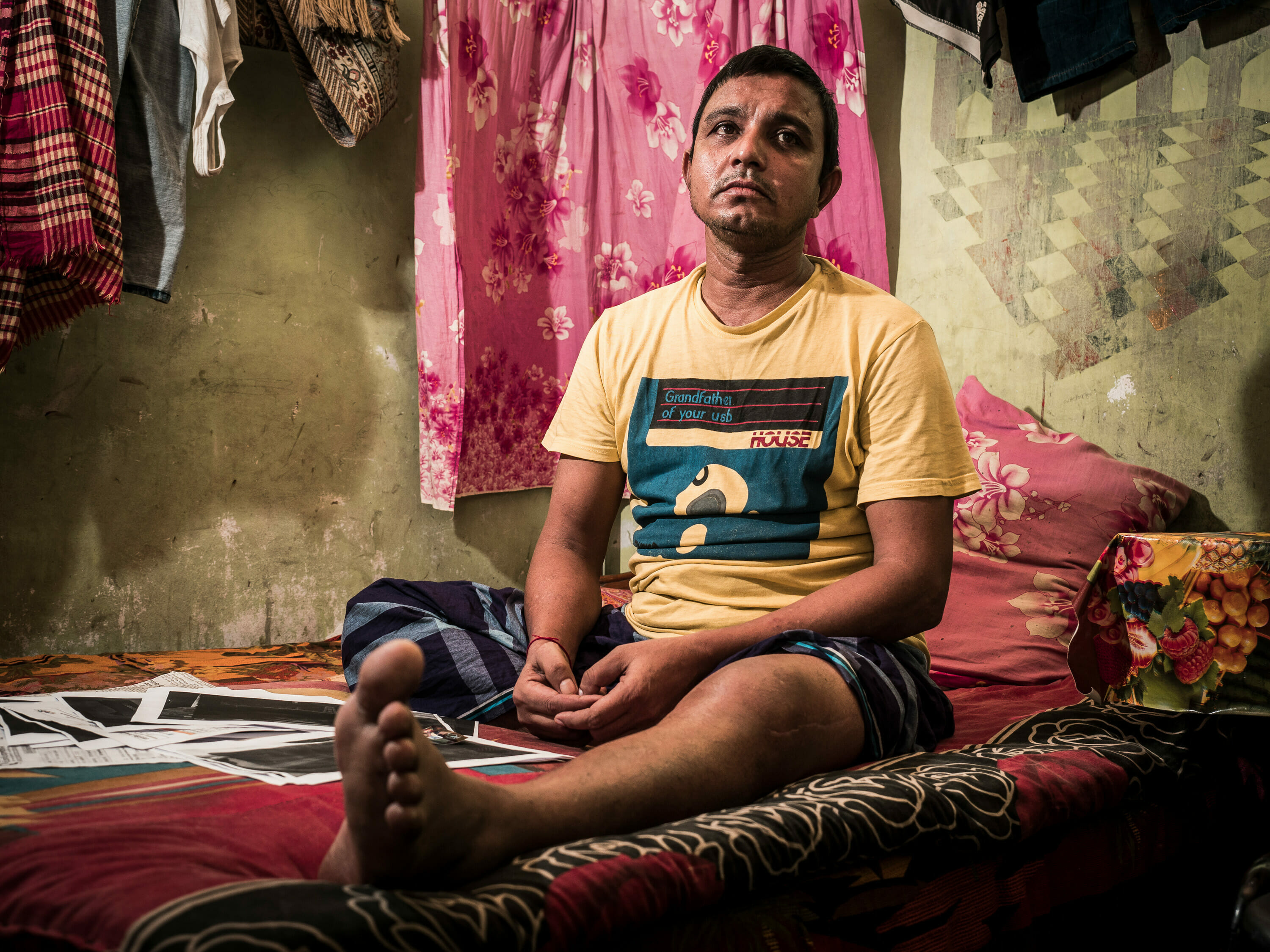 Injured shipbreaker, in his hut, Chittagong, Bangladesh photography by Luca Fasching