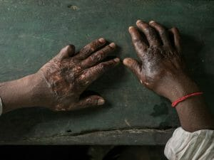 Hands of a burned shipbreaking worker, photography Studio Fasching, Reinhard Fasching Photographer