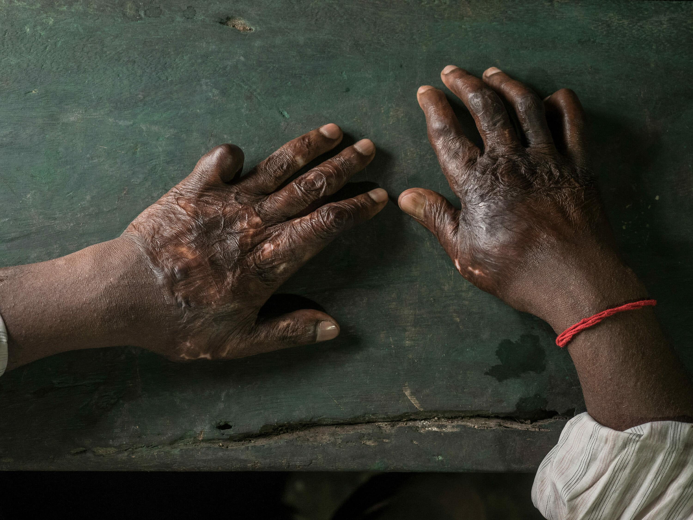 Hands of a burned shipbreaking worker, photography Studio Fasching, Reinhard Fasching Photographer