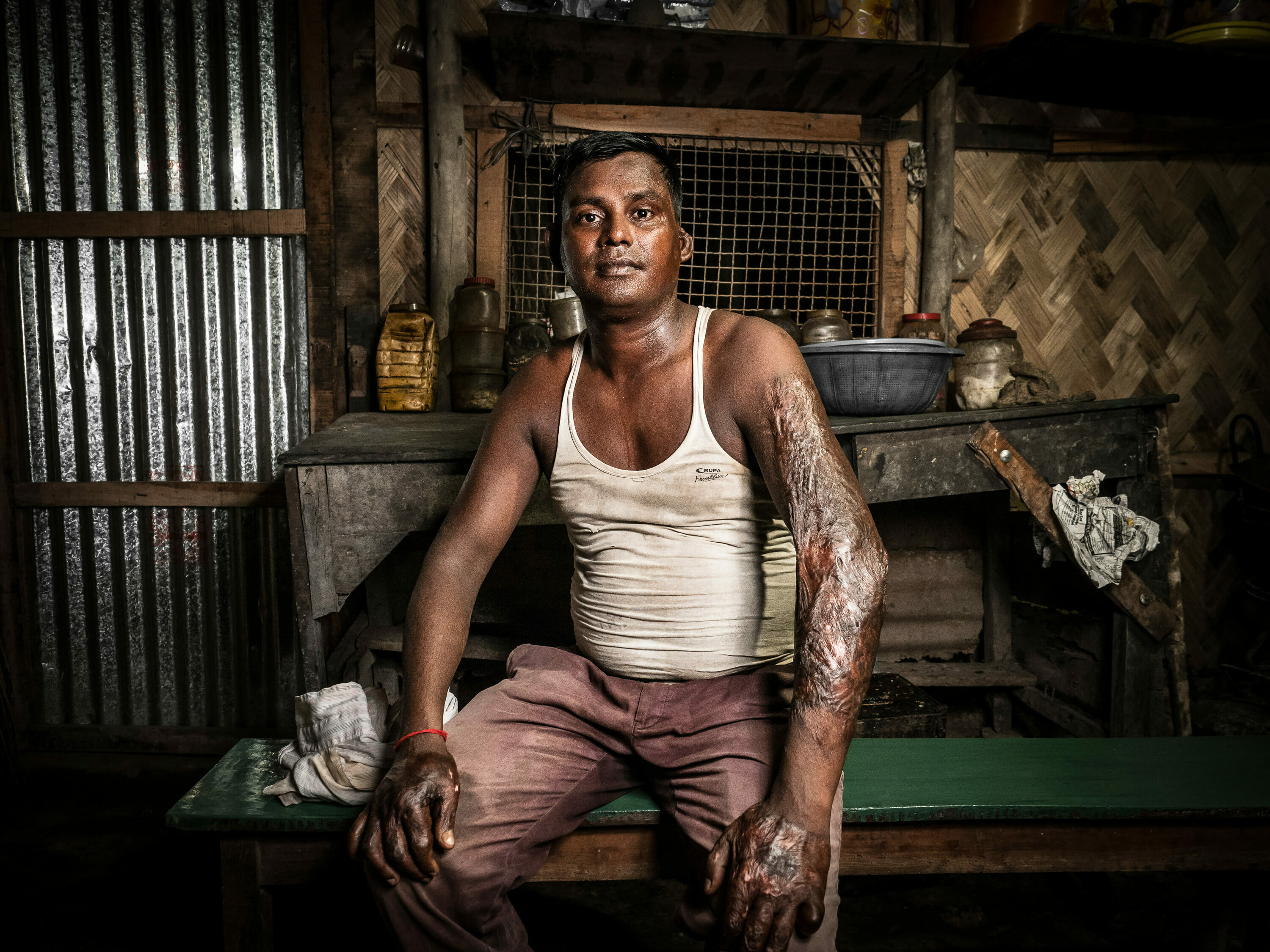 Injured worker with burnt skin, Chittagong, Bangladesh by Luca Fasching Photographer